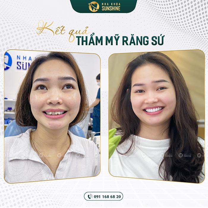 Bọc răng sứ cho răng cửa giá bao nhiêu tiền 7