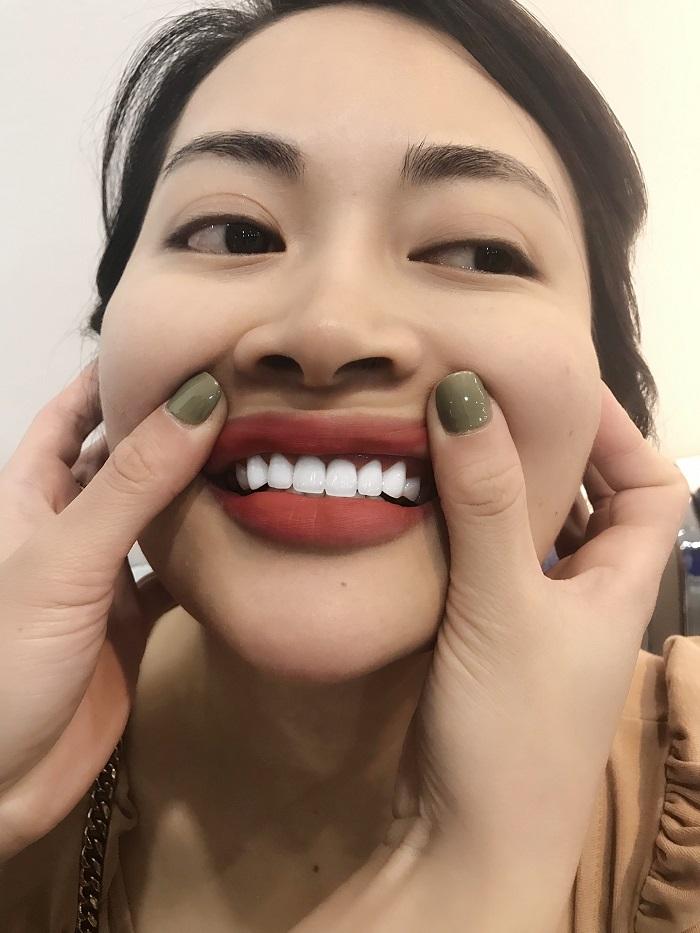 Bọc răng sứ giá bao nhiêu