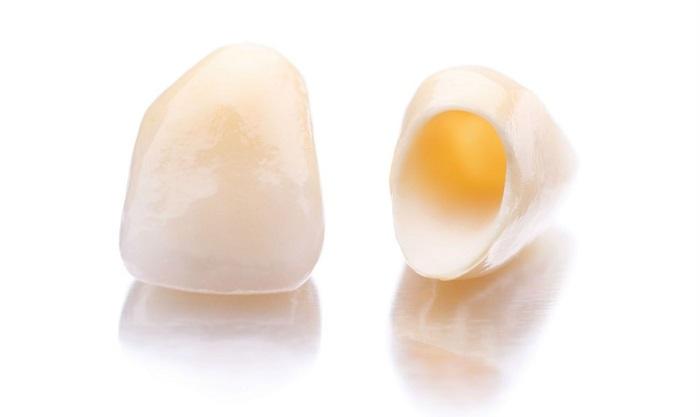 Các kiểu răng sứ đẹp