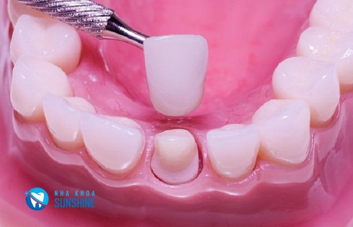 Các loại răng sứ của Đức