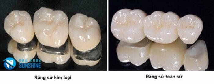 các loại răng sứ đẹp