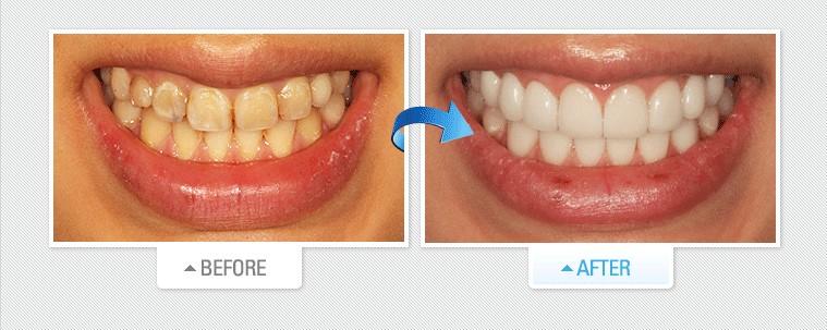 Cách dán răng sứ