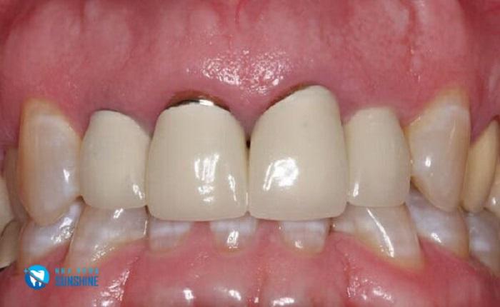 Cách nhận biết răng sứ bị hở