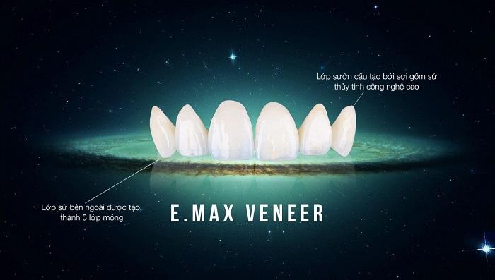 dán răng sứ ở hà nội