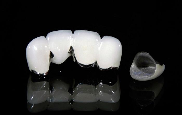 bảng giá làm răng sứ Titan