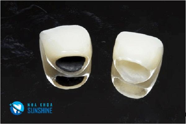 bọc lại răng sứ có đau không