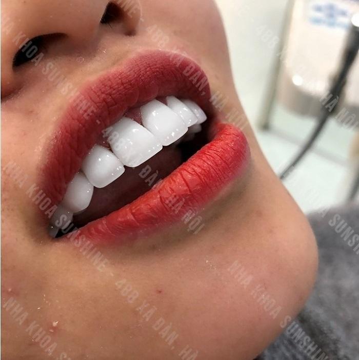 bọc răng sứ 1 chiếc được không