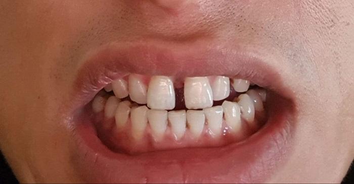 bọc răng sứ 2 cái