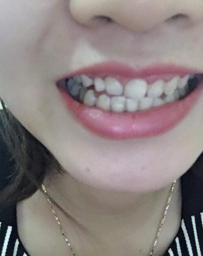 bọc răng sứ bao lâu phải làm lại