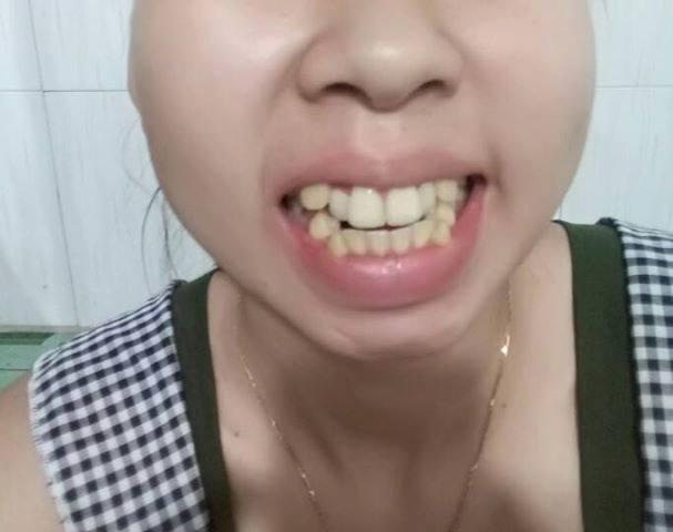 bọc răng sứ bị sưng lợi