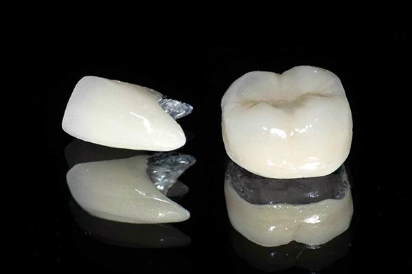 bọc răng sứ có bị đen lợi không