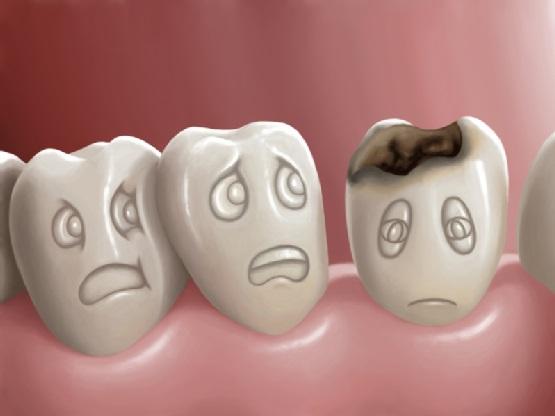 bọc răng sứ có bị sâu