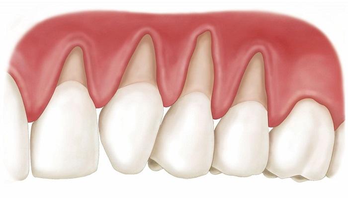 bọc răng sứ có bị tụt lợi không