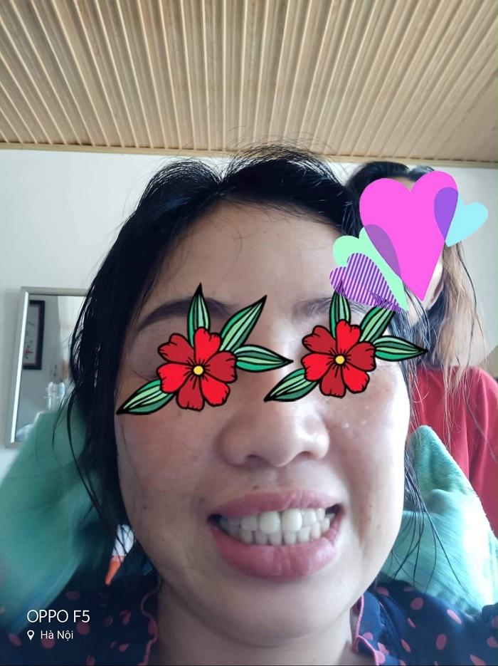 Bọc răng sứ có gây hôi miệng không? | NhaKhoaSunShine.vn