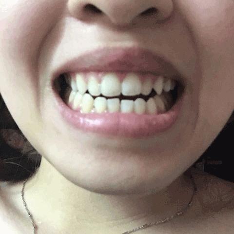 bọc răng sứ có hết móm không