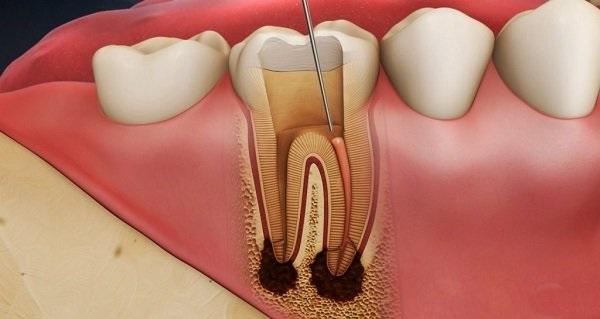 bọc răng sứ có nên lấy tủy không