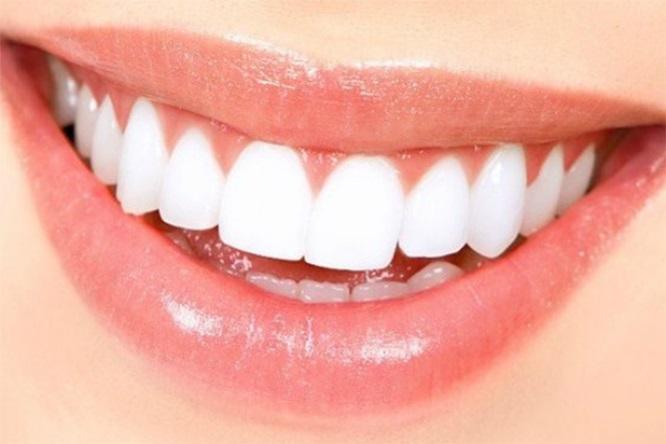 bọc răng sứ đau bao lâu