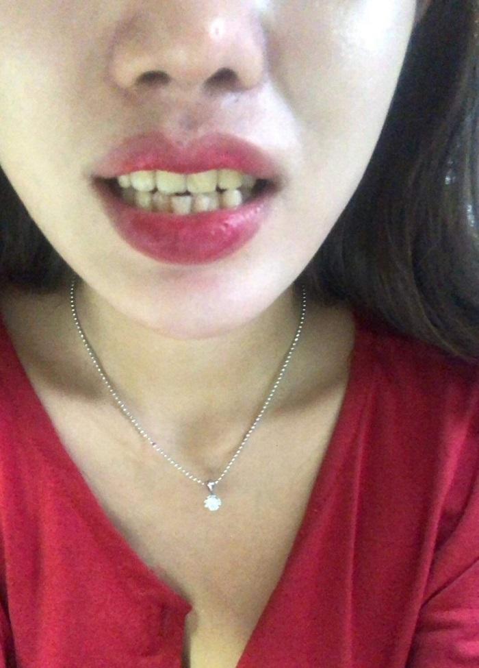 bọc răng sứ để làm gì