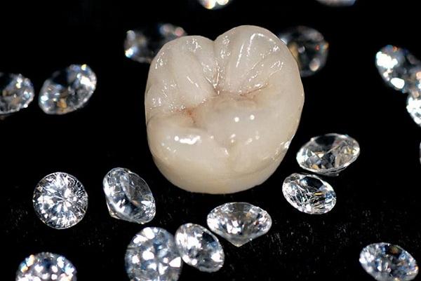 bọc răng sứ diamond