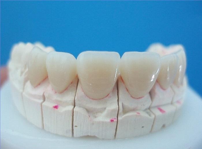 bọc răng sứ độ bền bao lâu
