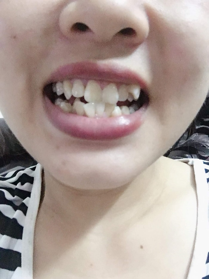 bọc răng sứ duy trì được bao lâu