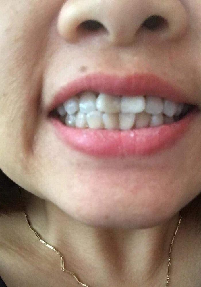 bọc răng sứ hậu quả