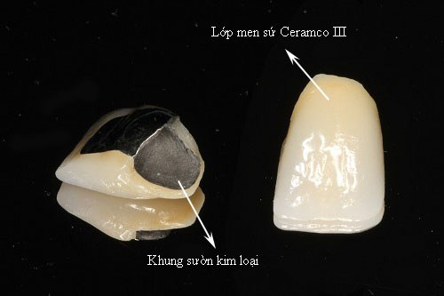 bọc răng sứ inox