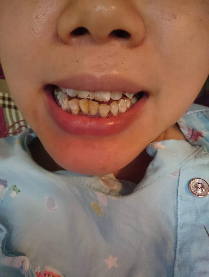 bọc răng sứ toàn hàm giá bao nhiêu