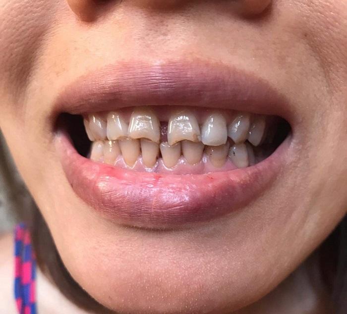 bọc răng sứ xong bị đau
