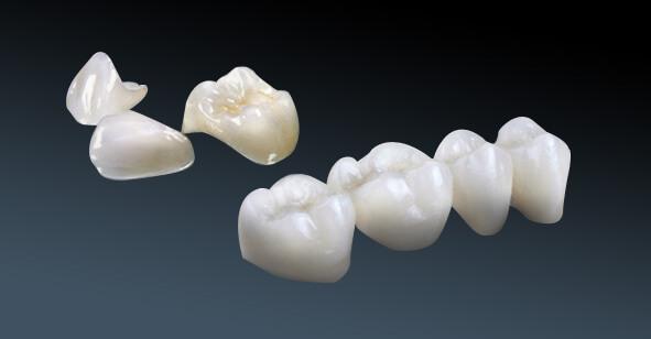 bọc sứ răng đã lấy tủy