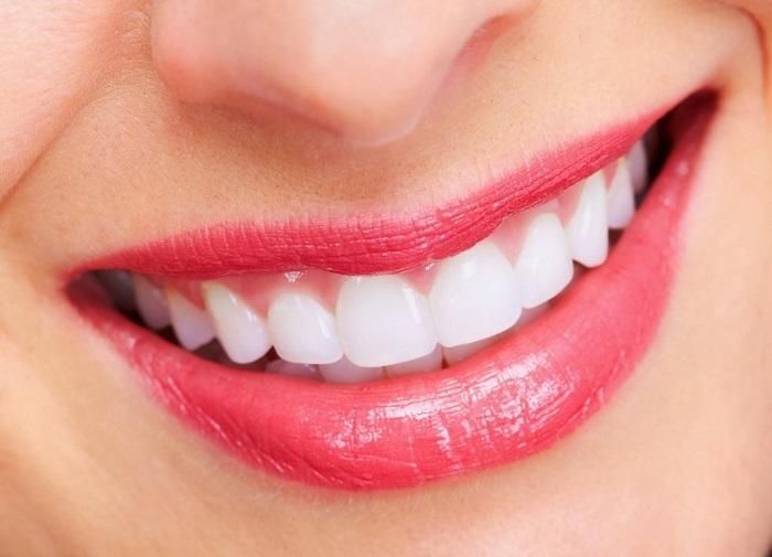 cách làm veneer răng