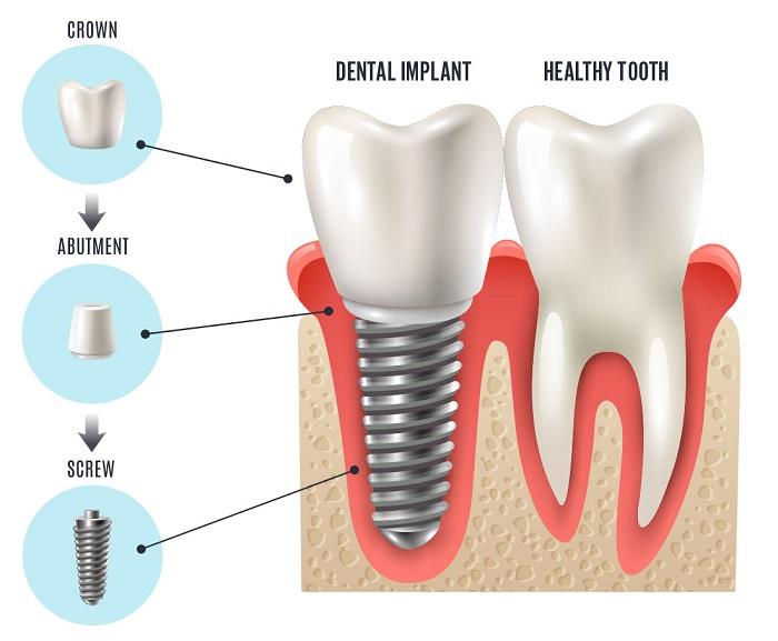 cách trồng răng hàm giả