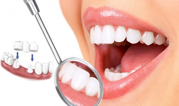 cầu răng sứ titan