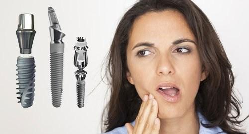 cấy ghép Implant có đau không