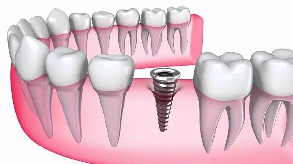 cấy ghép Implant trong thời gian bao lâu