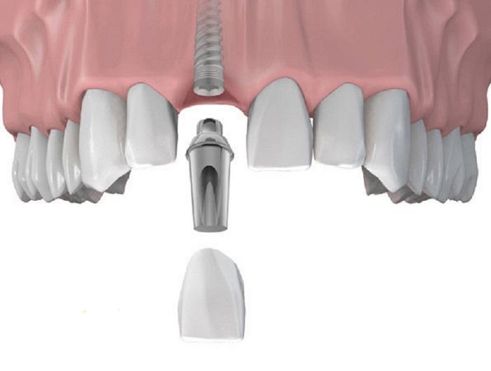 cấy ghép Implant tức thì