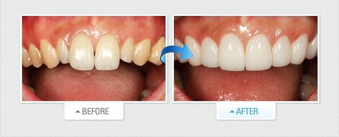 chi phí dán răng sứ veneer
