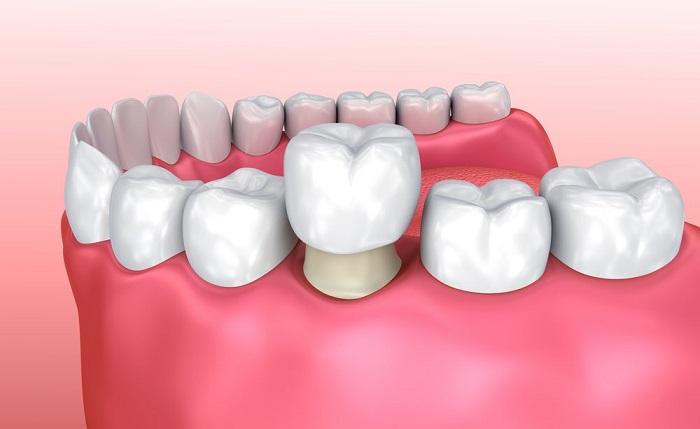 chi phí trồng 1 cái răng