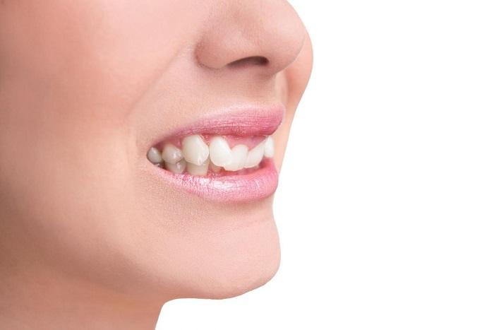 chi phí trồng răng khểnh