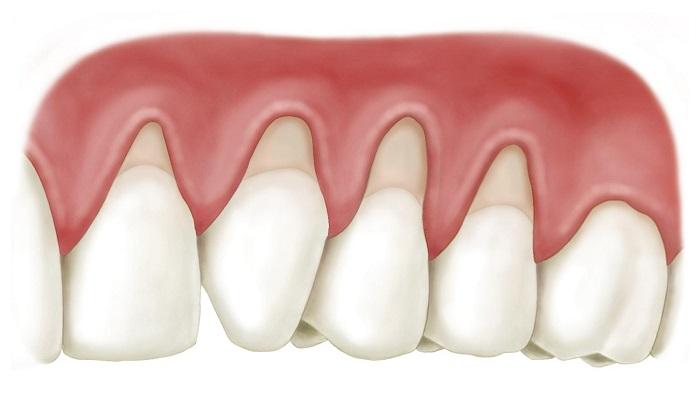 chụp răng sứ có tác hại gì