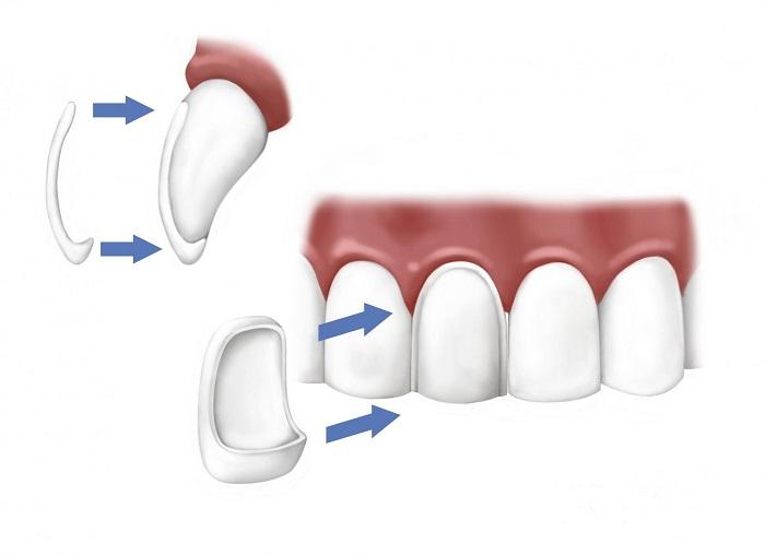 chụp răng sứ veneer