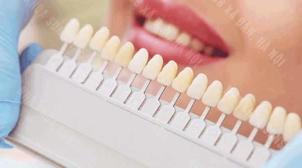 có nên dán răng sứ veneer