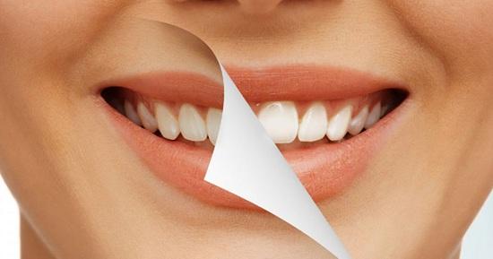 có nên làm răng sứ hay không