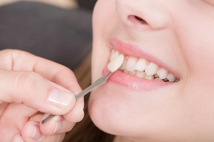 công nghệ làm răng veneer
