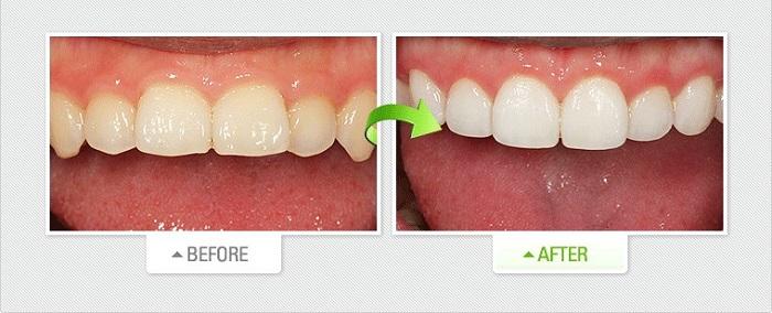 dán răng sứ nano giá bao nhiêu