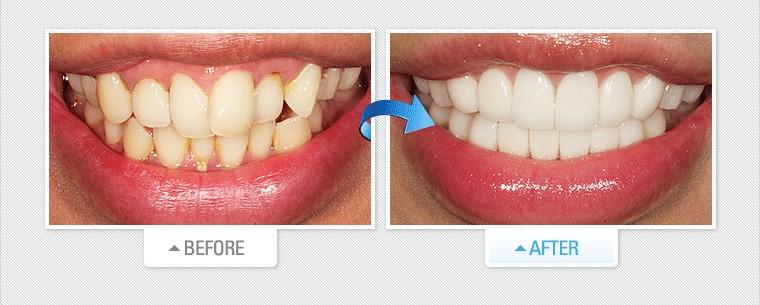 dán sứ răng cửa