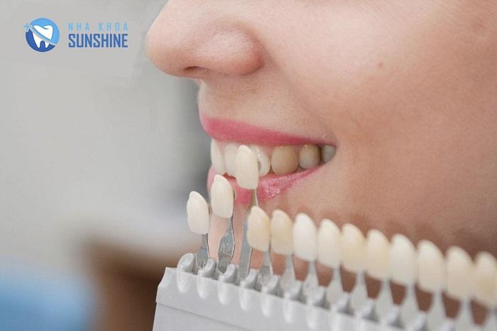 dịch vụ trồng răng sứ