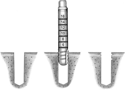 dụng cụ cấy ghép Implant