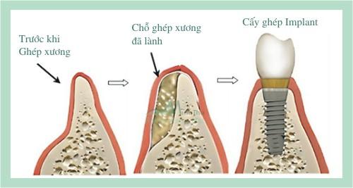 ghép xương trong cấy ghép Implant