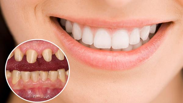 giá bọc răng sứ bị sâu